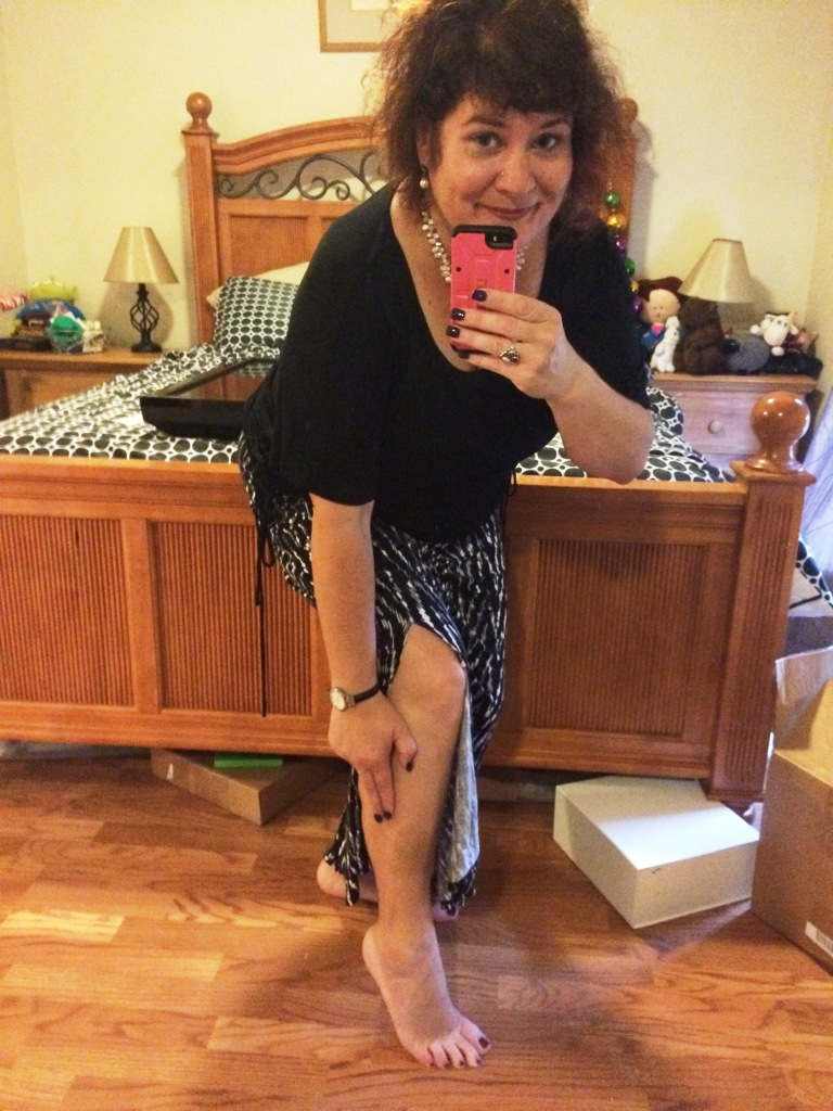 Can You See My Bruise? This Is Me a Few Days Home. April 30, 2016.