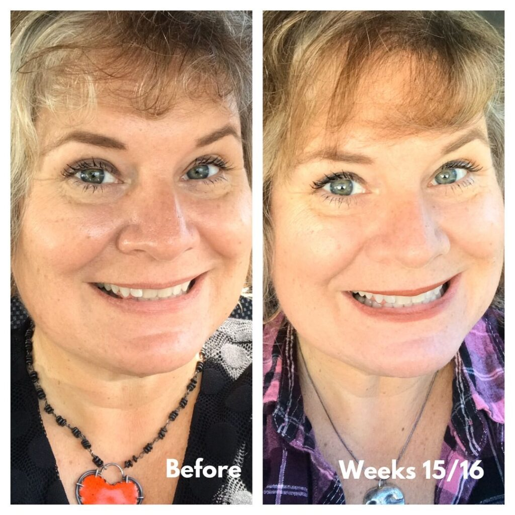 Before I Started Using Smile Direct Club Clear Aligners and Me Wearing the Weeks 15/16 Aligners. I Can See A Difference in My Smile, Can You?